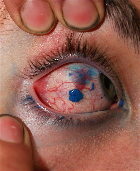World's first eyeball tattoo and its not done at Abu Gharib